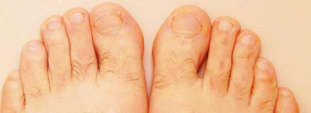 Средство Экзодерил от грибка ногтей на ногах