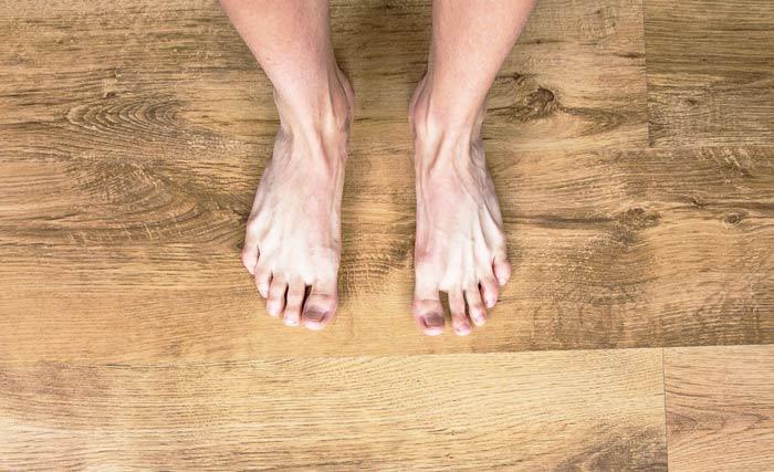 Варикоз ног лечение мази таблетки