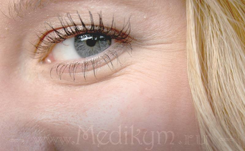 ретиноевая мазь от морщин отзывы косметологов