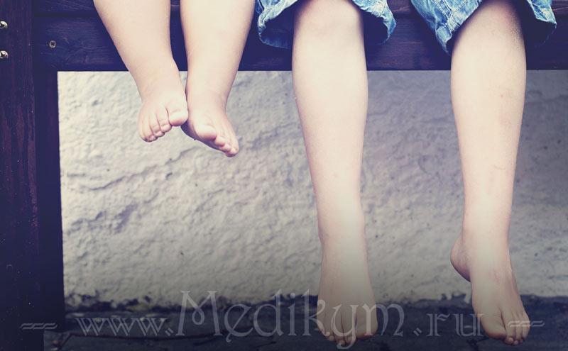 Фото: Шипица на ноге у ребенка