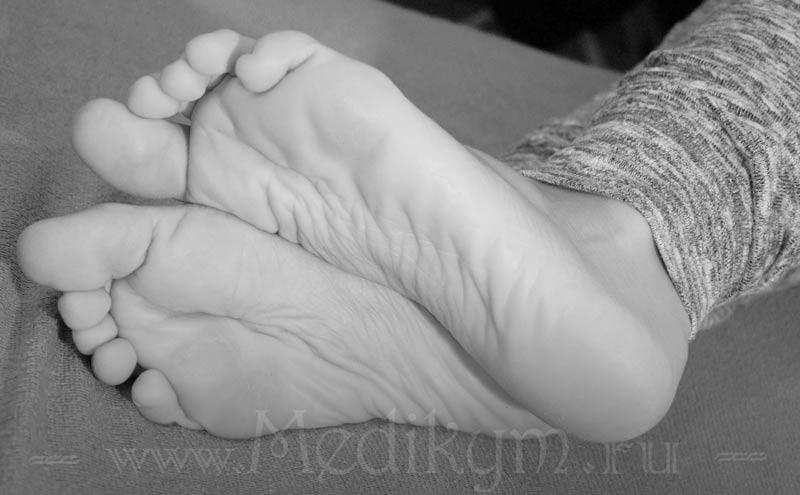 Фото: Как выводить шипицу на ноге