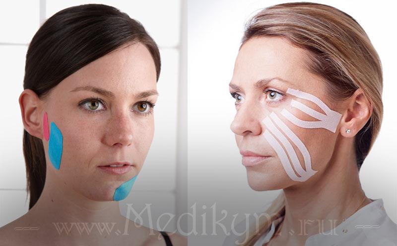 Тейпирование в косметологии