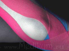 Фото: Тейпирование мышц